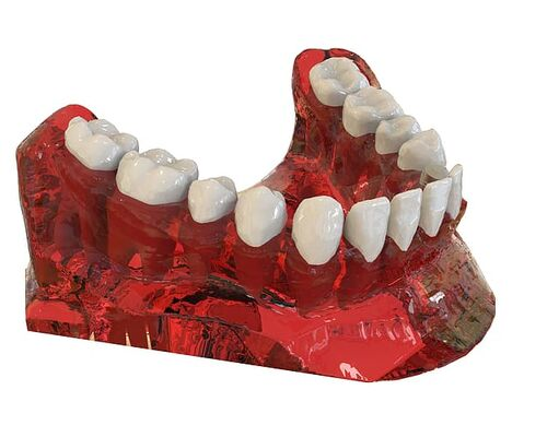 teeth-jaw-3d-model-orthodontics