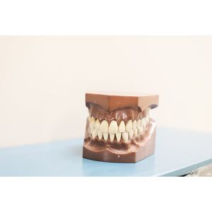 tooth-dentist-molar-wisdom-tooth-tooth-removal-tooth-extraction
