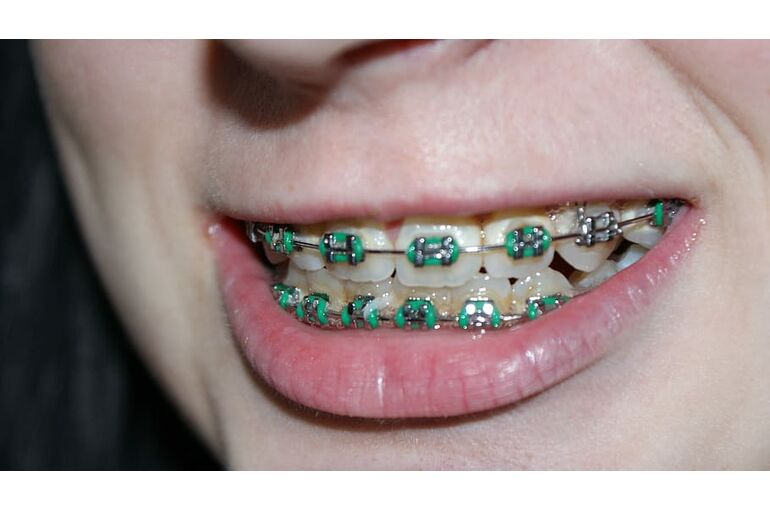 tooth-dental-braces-bite-mouth