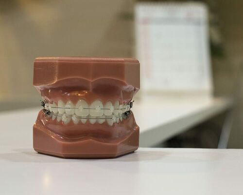 brace-dentist-teeth-wire